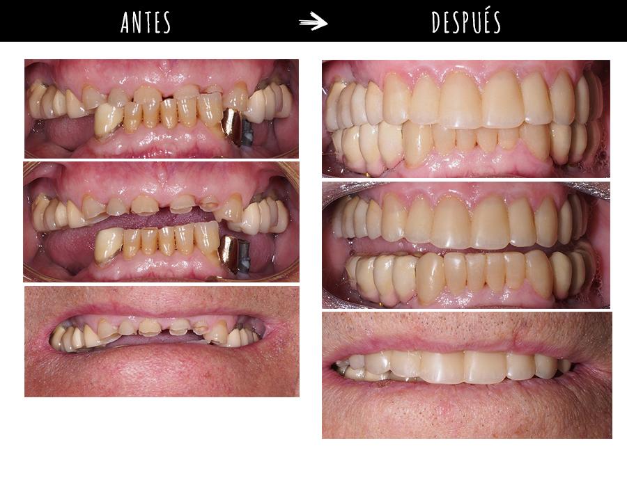 Odontología estética: la clave para lograr una bonita sonrisa… y mucho más