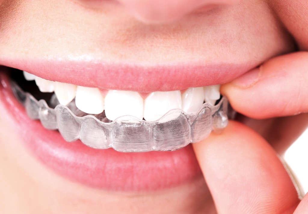 ¿Es la ortodoncia invisible igual de eficaz?