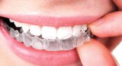 Invisalign, la ortodoncia sin brackets