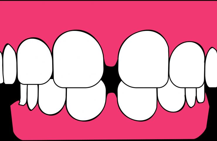 Cómo saber si tienes una enfermedad periodontal