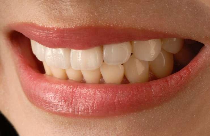 Ventajas de las carillas para mejorar tu sonrisa