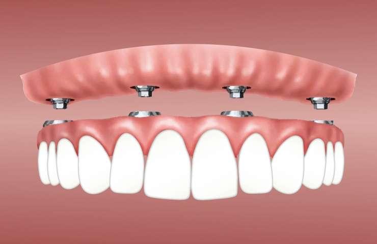 ¿Qué es un implante dental y cuándo es la opción que necesito?